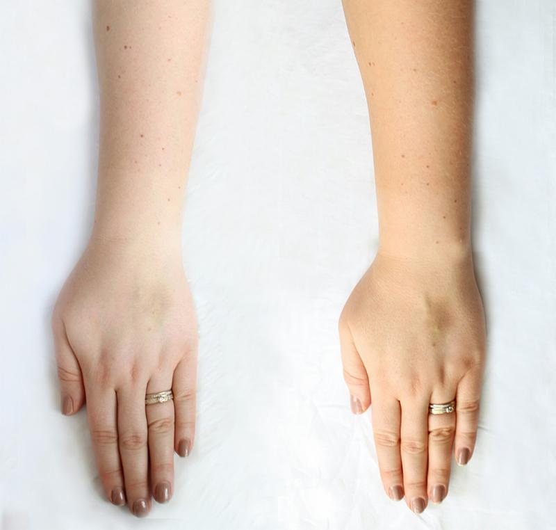 Före och efter Clarins brun utan sol